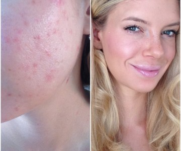 get-rid-of-acne-nikki-sharp